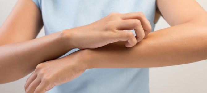 Fungal Skin Infections: How To Treat Them?
