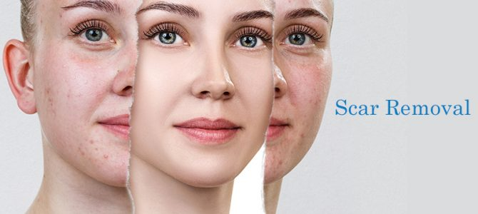How much does it cost for scar removal in India?