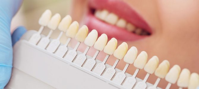 Dental Bridge or Implant. What is the Best Option?