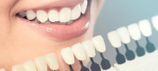 What to Choose: Prophylaxis or Ultrasonic Dental Cleaning?